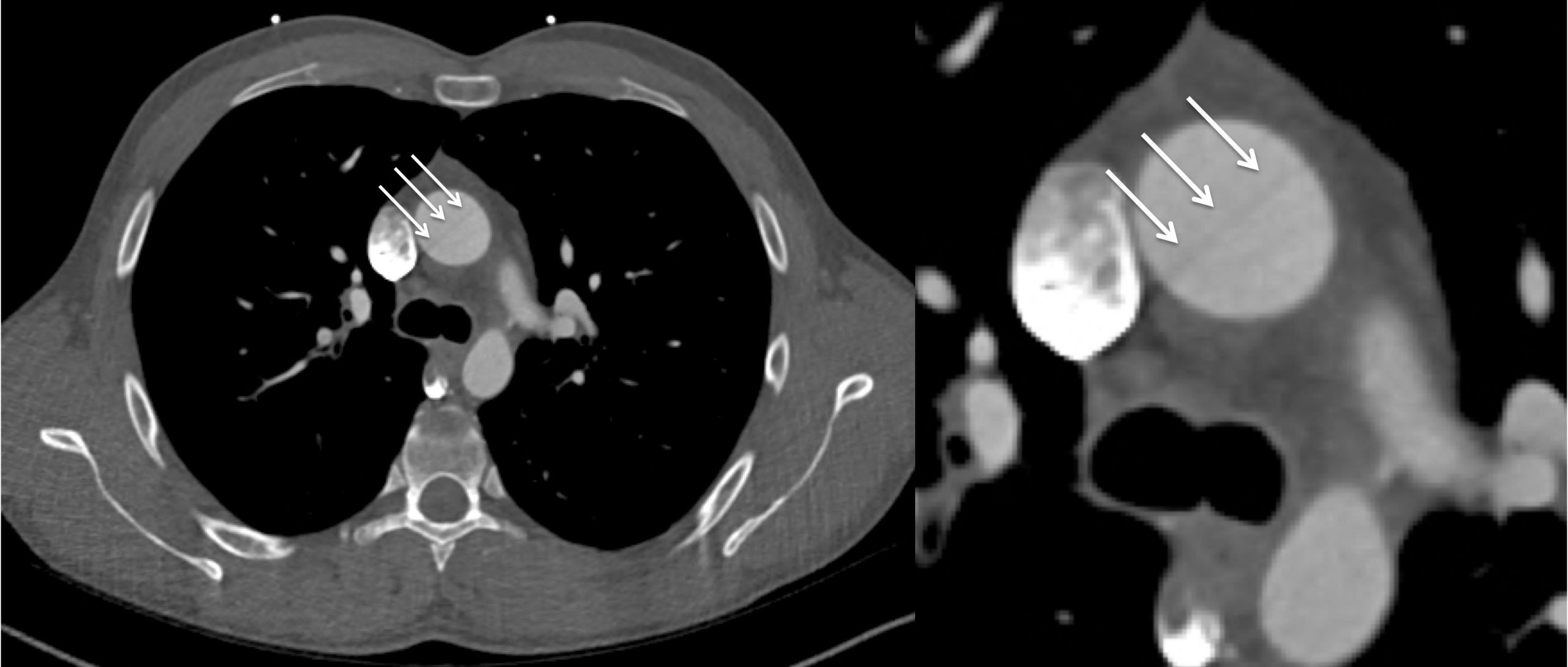 Image of the Month March 2020- Interpolation Reconstruction Artefact On ECG-Gated CT; A Mimic Of Aortic Dissection